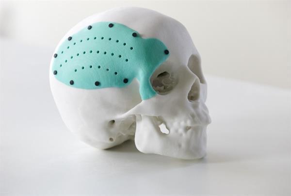tạo bộ phận cơ thể người bị hư hỏng